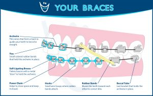 Diagram Hrabowy Orthodontics Columbus Grove City OH