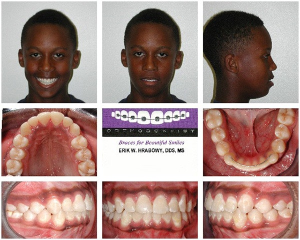 Image After Black Haired Boy Hrabowy Orthodontics Columbus Grove City OH