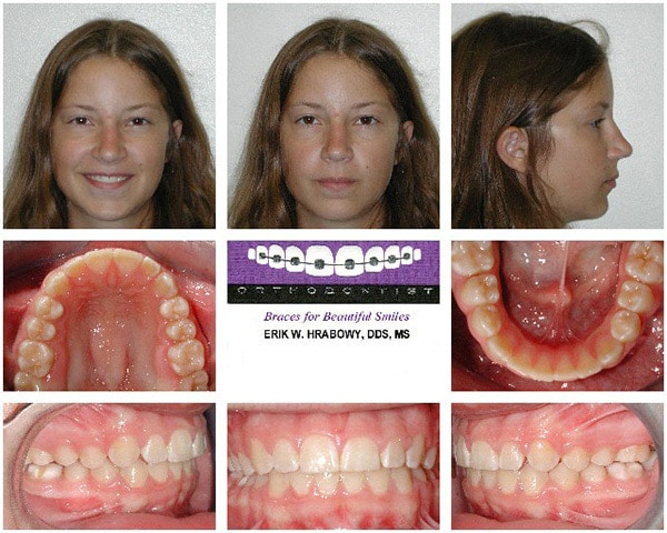 After Image Brunette Girl Hrabowy Orthodontics Columbus Grove City OH
